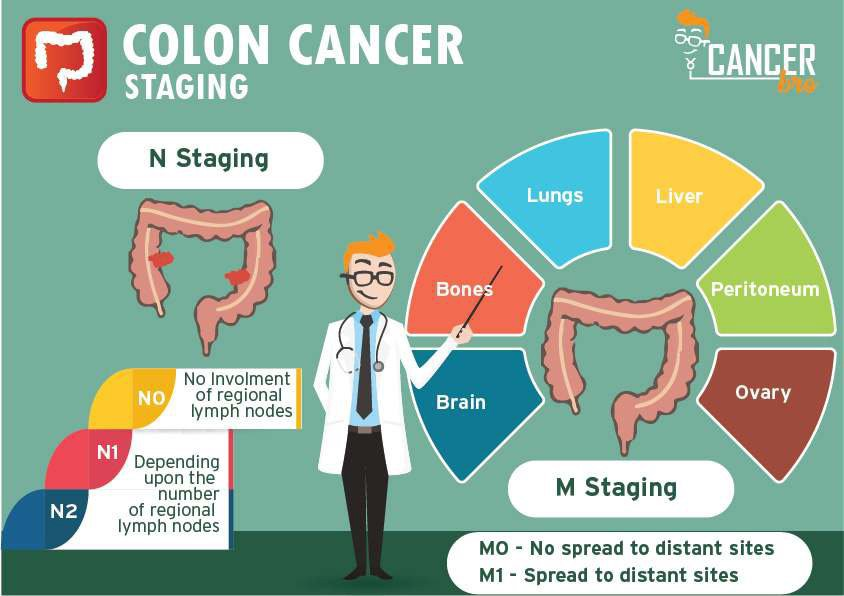 Colon Cancer Tnm Staging Explained Videos Infographic In Easy Way By Minakshi Singhania Medium