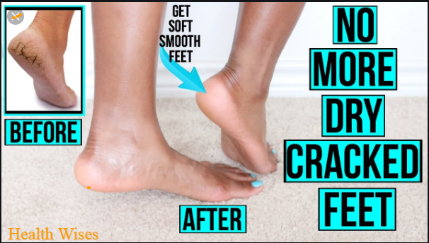 How To Fix Cracked Heels Permanently In 5 Mins
