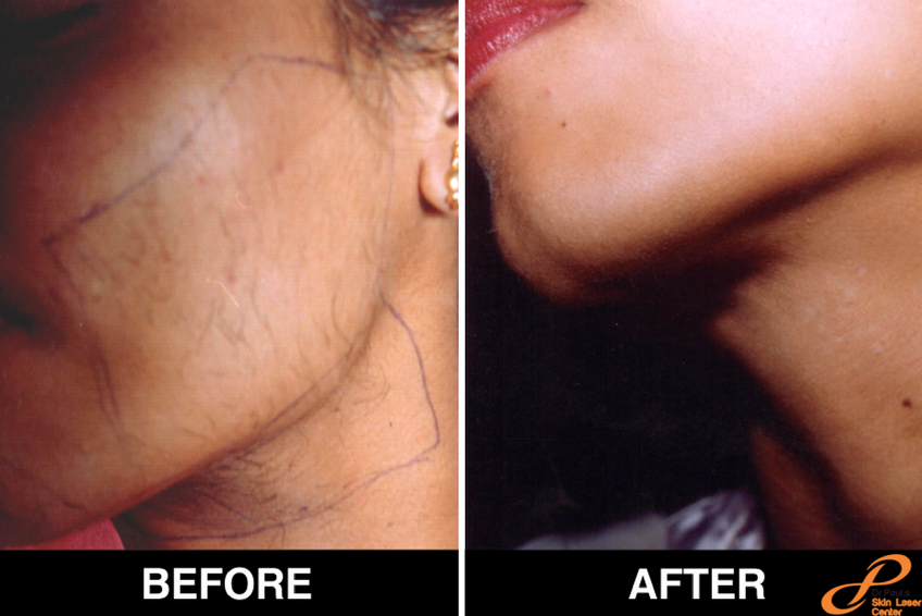 Best Laser Hair Removal Treatment Clinic In Delhi By Skin Laser