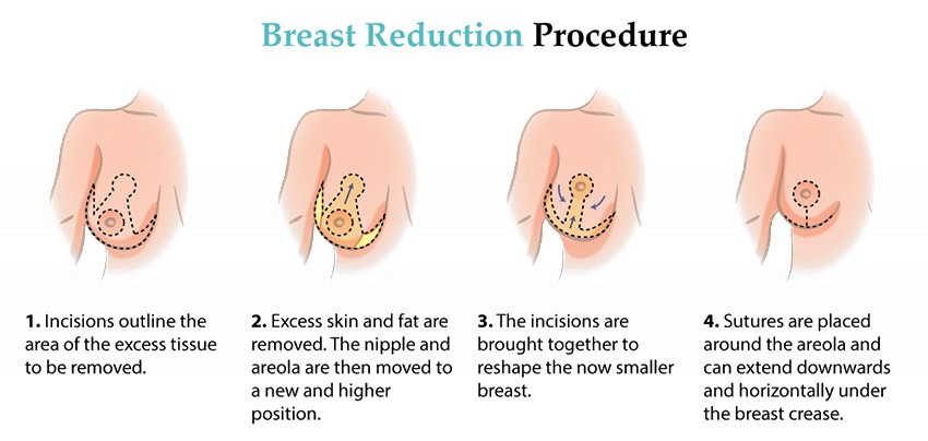 Breast Reduction Surgery What It Is Benefits Procedure Risks