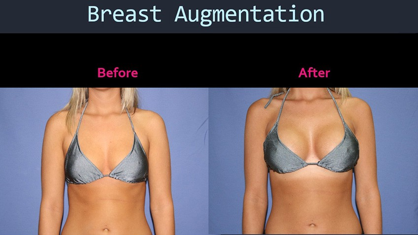 Why Getting Both a Breast Lift & Breast Augmentation is Sometimes the Best  Solution