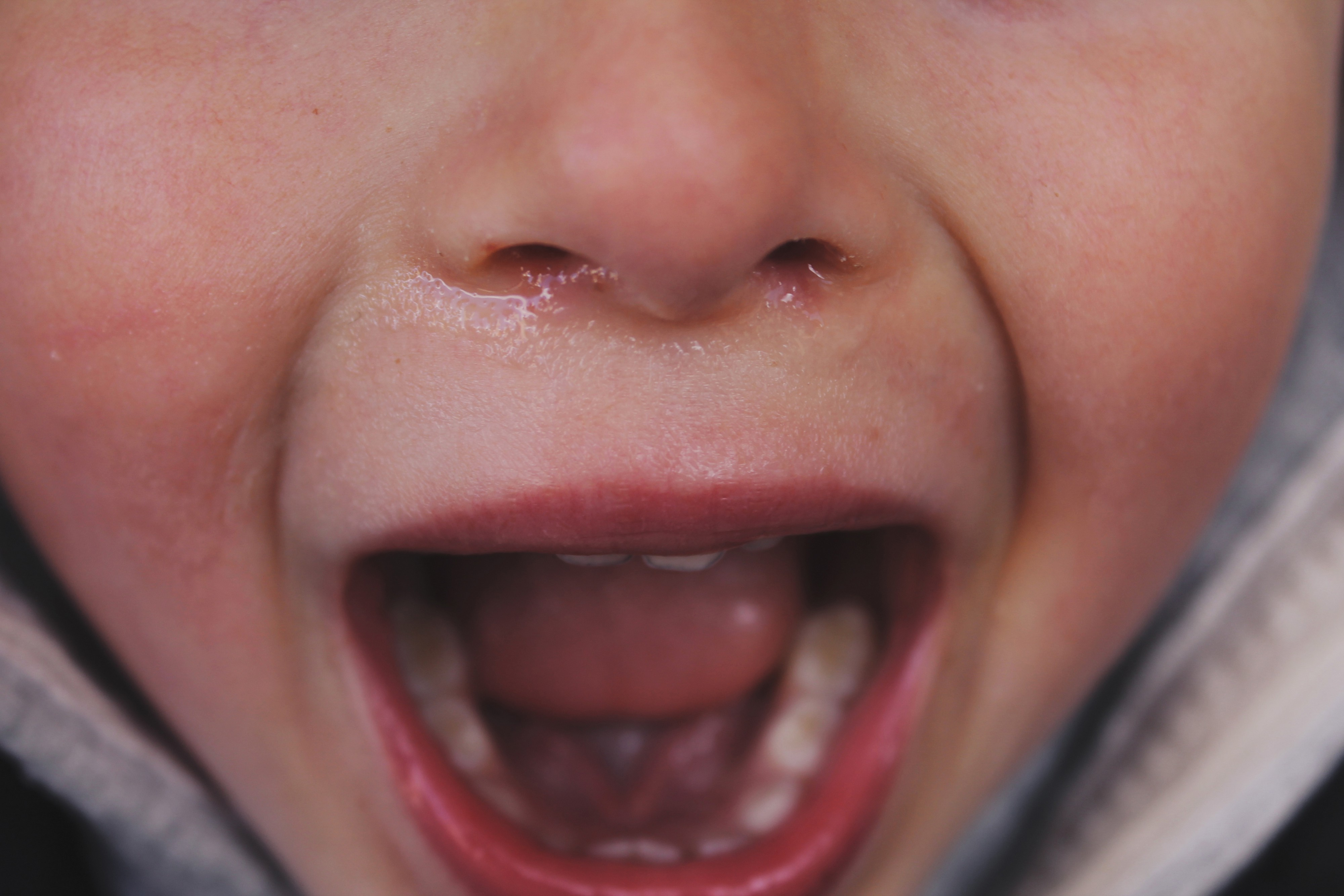A close up of a yelling child with snot coming from nose.