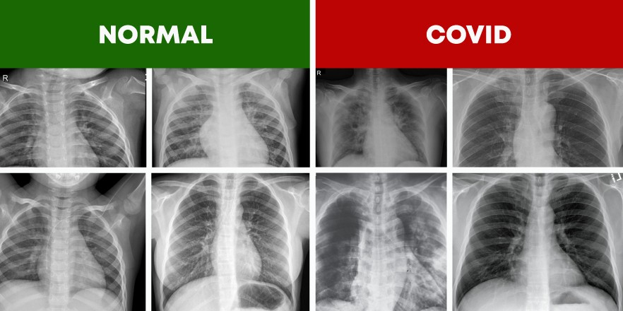 COVID-19 Detector Flask App from Chest X-ray Images with Keras