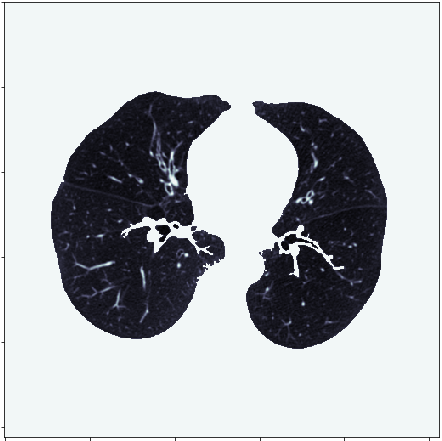 A Comprehensive Guide To Visualizing and Analyzing DICOM Images in