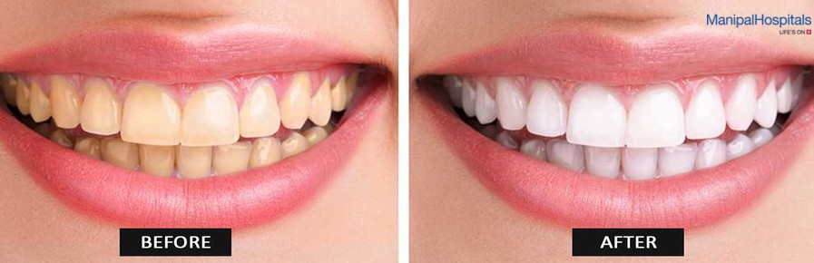 Laser Teeth Whitening How Does It Work By Murali Krishna Medium