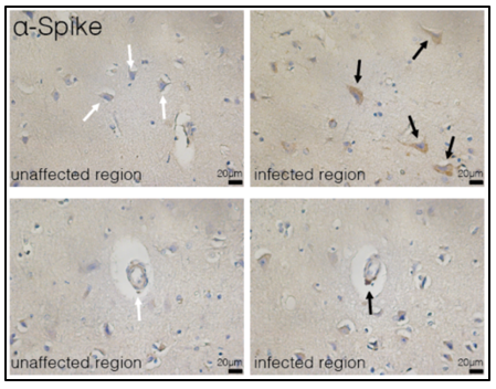 Images of unaffected regions and infected regions demonstrating infection of neurons and microvasculature.