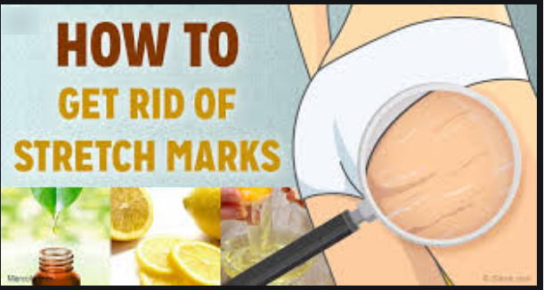 How To Get Rid Of Stretch Marks In 2 Weeks