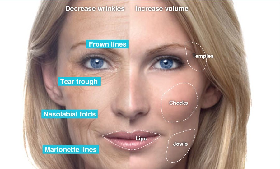 Botox Vs Dermal Fillers, Discover The Difference - Skin Club