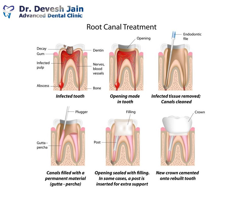 Did Your Tooth facing these 3 Signs? You Might Need A Root