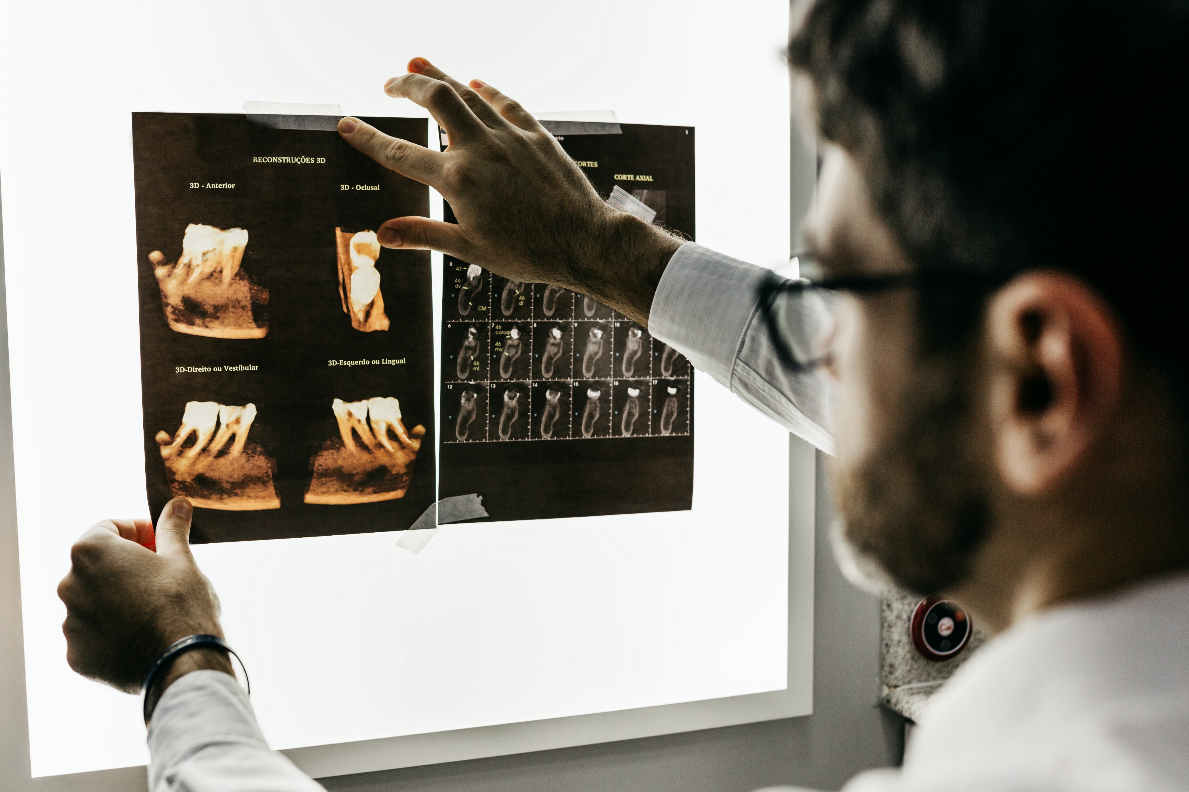 Male doctor holding an X-ray picture agains the bright lighted wall