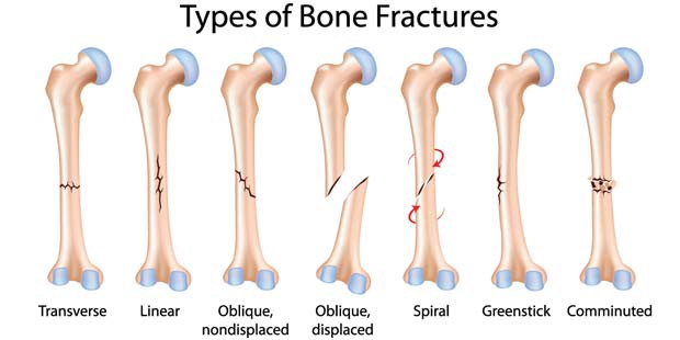 Common Types of Bone Fractures – Dr. Manoj Goel – Medium