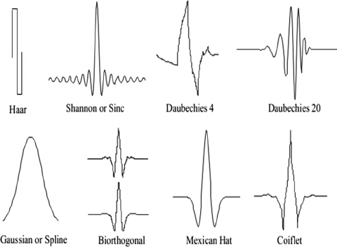 Electrocardiograms: QRS Detection Using Wavelet Analysis