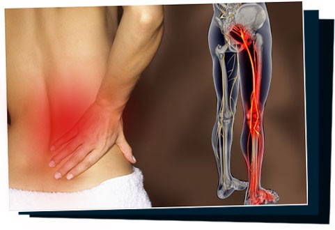 6 Sciatica Cure Success Stories Click Here To Read Others Sciatica By Share Ev Medium