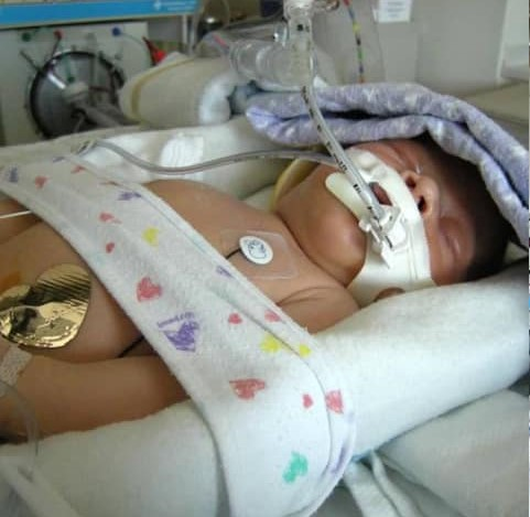 My granddaughter in a NICU days after her birth.