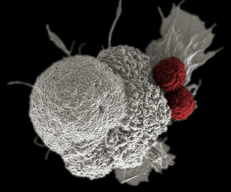 Scientists Discover T Cells That Kill Cells From Solid Tumors